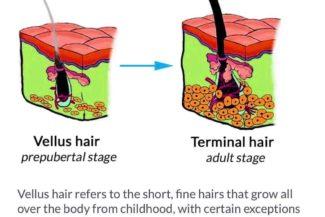 Vellus hair Chongqing